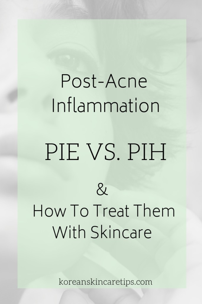 Simple Skincare Tips To Get Rid Of Post Inflammatory Hyperpigmentation
