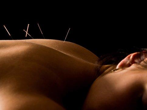 Acupuncture in Koreatown