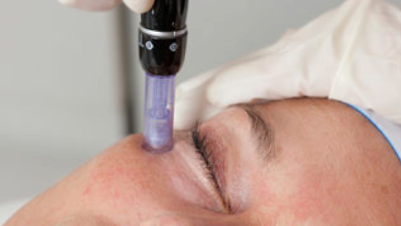 micro needling face treatment kosmetik studio basel