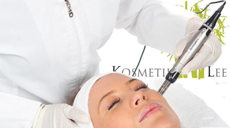 Pigmentflecken, Hyperpigmentation und Pigmentverschiebun mit Mesotherapie