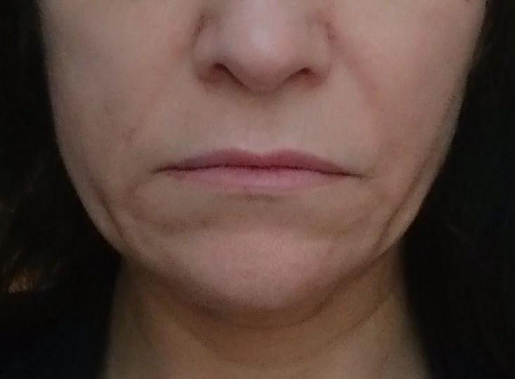 Aknebehandlung Kosmetikstudio Rottweil und Oberndorf Botox