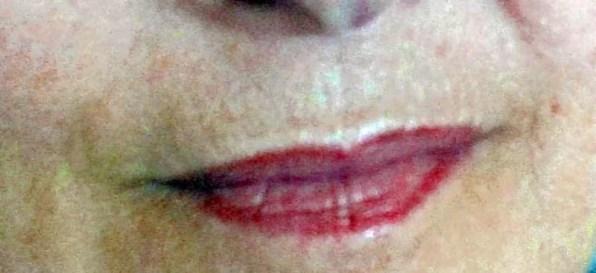 gegen Lippenfältchen mit dermaroller Rottweil
