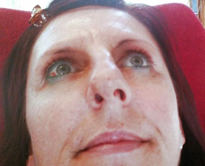 Augenbrauen tätowieren entfernen Albstadt-Ebingen rottweil Bad Dürrheim