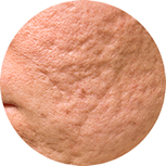 Aknenarben und Narben entfernen Kosmetik für Villingen-Schwenningen