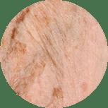 Pigmentstoerungen und Altersflecken werden entfernt im Kosmetikstudio für den Raum Villingen-Schwenningen