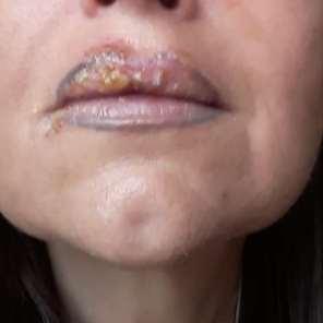 Retuschierung der Lippenkontur nach Fehlverzeichnung mit schwarzer!!! Farbe