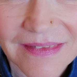 Lippenvergrößerung vorher
