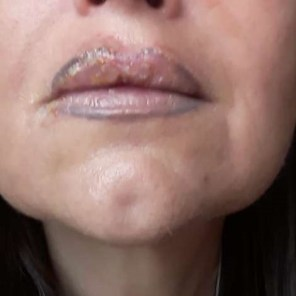 Retuschierung Lippenkontur, die mit schwarzer Farbe gezeichnet wurde.