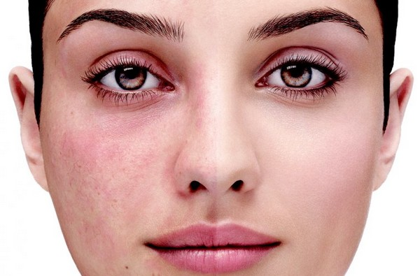 Before darsonvalization, a person suffering from rosacea should consult a doctor