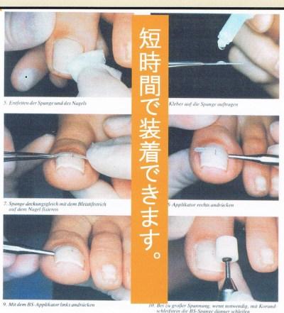 巻き爪矯正の流れの図