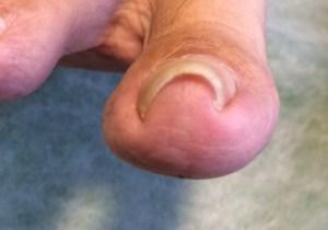 巻き爪の指のアップ