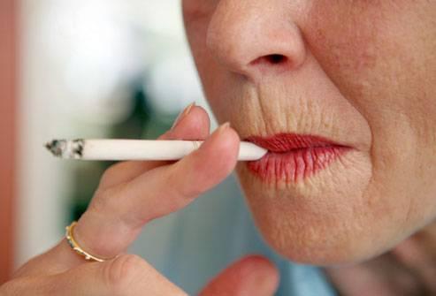 linii în jurul gurii pierdere în greutate)