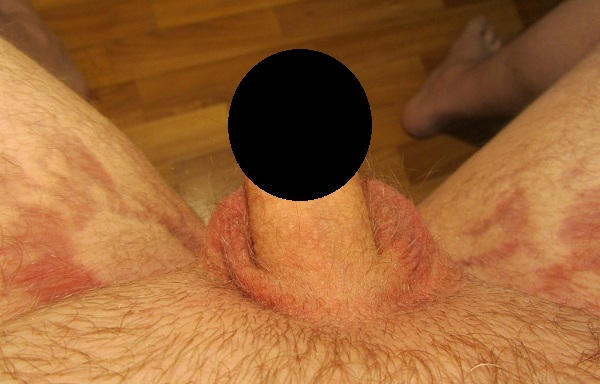 Коричневые пятна в паху у мужчин: фото, причины, лечение. Коричневые пятна в паху у мужчин