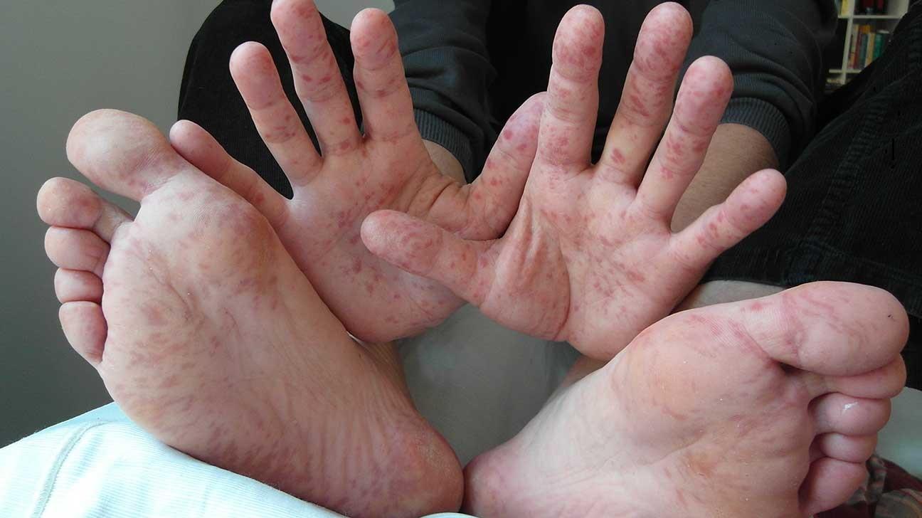 Helminták inkubációs periódusa - Kutyabetegségek és tüneteik. Veszélyes kutyabetegségek