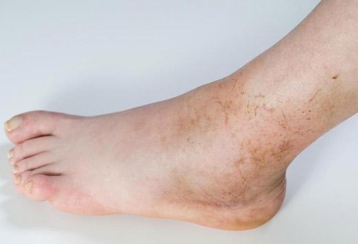 Темные пятна на ногах - почему появляются, фото и лечение