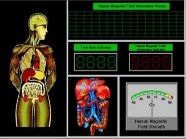 790-din-za-kompletnu-kvantnu-analizu-organizma-300-parametara-saveti-za-ishranu-kvantna-analiza-koze-saveti-za-tretmane-koze-lica-3939-1