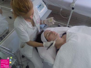 tretman 4