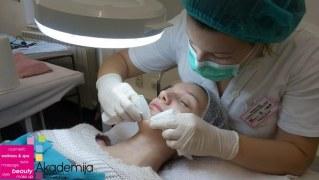 TRETIRANJE AKNOZNE KOŽE – sa nastave na predmetu: Medicinski tretmani lica