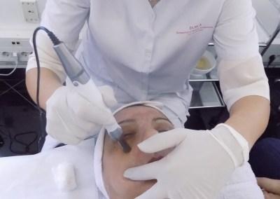 Kako tretirati mrlje na licu
