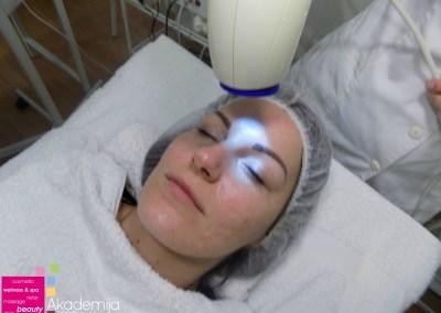 Kako se rešiti ožiljaka na licu