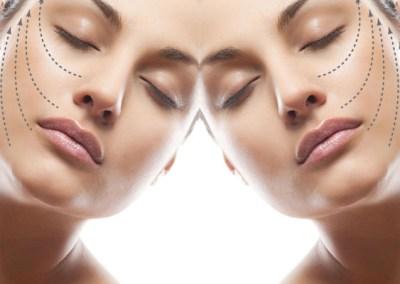 Zatezanje kože lica sa mezonitima