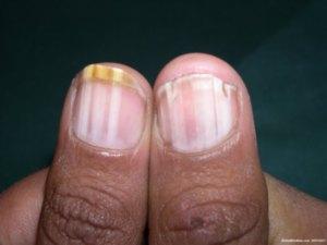 promene na noktima