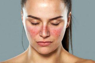 HRONIČNI ERITEMSKI LUPUS –  imunološki i hematološki poremećaj