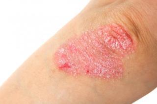 KADA SE POJAVLJUJE PSORIJAZA? – uzroci pojave ovog oboljenja kože