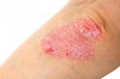 psoriasis-on-an-elbow