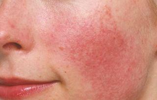 KAKO PREPOZNATI KUPEROZU? – upala kože lica