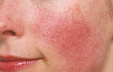 EUC-INT-AS-indication-rosacea-and-couperose-01