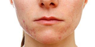 HORMONSKE AKNE – šta raditi nakon pregleda kod dermatologa?