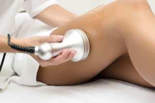 RAZBIJANJE CELULITA ULTRAZVUKOM – ultrazvučna kavitacija