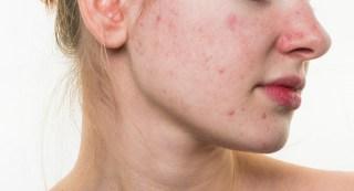 Šta izaziva i podstiče pojavu simptoma masne i problematične kože?