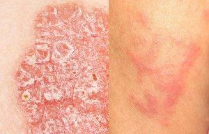 Kontaktni dermatitis