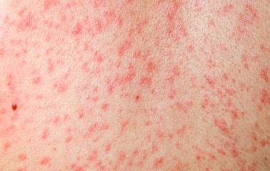 CI-measles