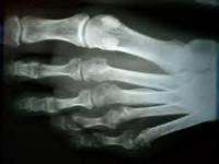 Маршевая стопа или болезнь Дейчлендера: причины, симптомы и методы лечения. Маршевый перелом плюсневой кости