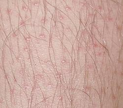 Что означает гиперкератоз плоского эпителия. Гиперкератоз — кожи и плоского эпителия (фото), лечение и препараты. Причины и избавление от патологии эпителия