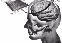 A silicon chip implanted in the brain cortex through pedestal