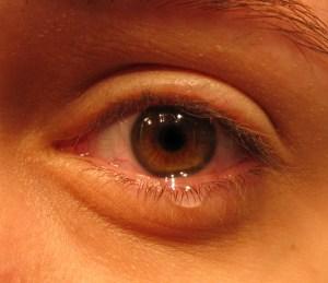 tear filled eye morguefile