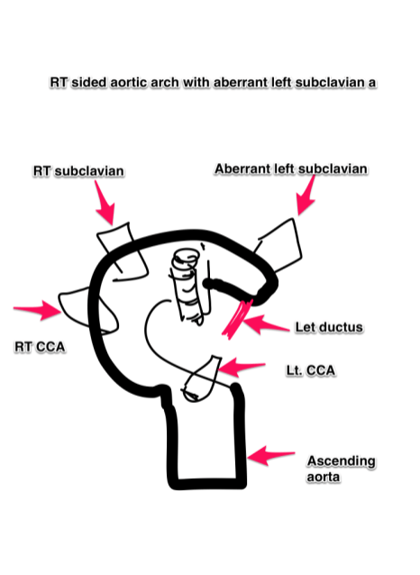 Rt aortic arch and aberrant left subclavian artery ...