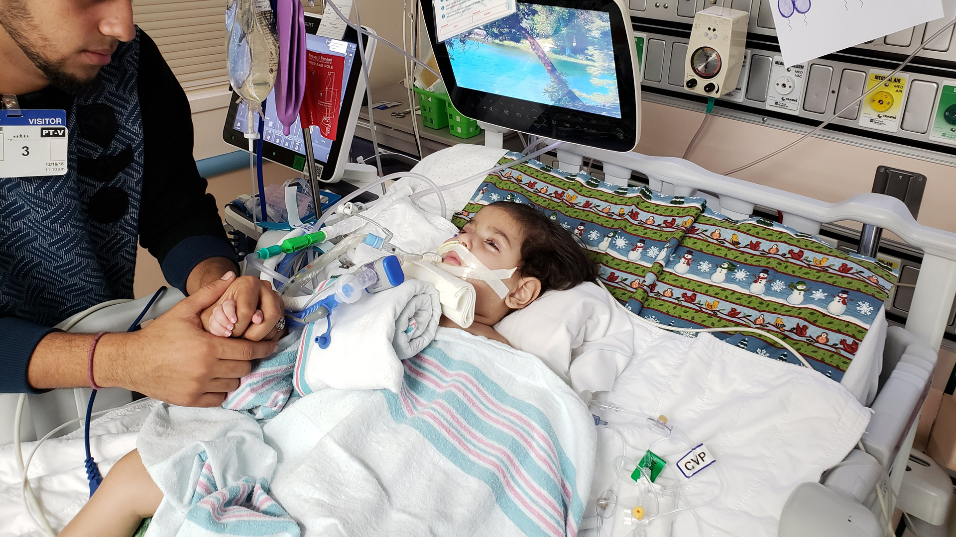 Abdullah Hassan, 2, is at UCSF Benioff Children's Hospital in Oakland due to a worsening genetic brain condition. (Credit: CAIR - Sacramento Valley)