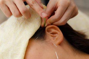 耳の鍼治療