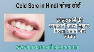 Cold sores in Hindi
