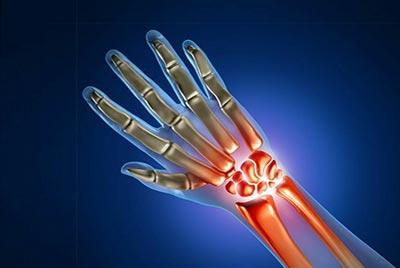 МРТ лучезапястного сустава кисти руки | Кунцевский центр ...
