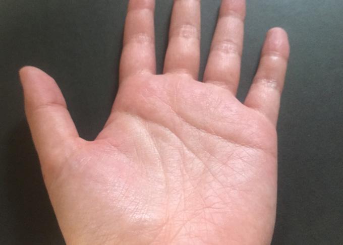 手掌多汗症(しゅしょうたかんしょう) 日常生活に支障を来たす程の手の汗