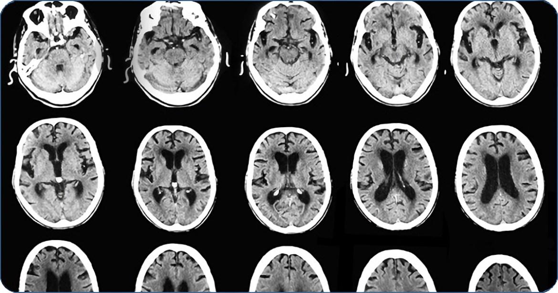 Монтаж компьютерного томографа в Областной  инфекционной больнице начнется 15 декабря