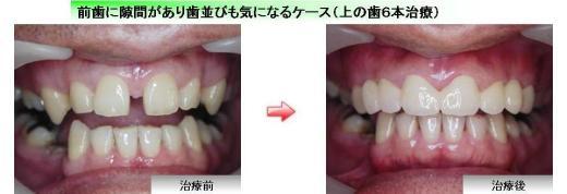 ジルコニア症例3 前歯い隙間があり歯並びも気になるケース(上の歯6本治療)