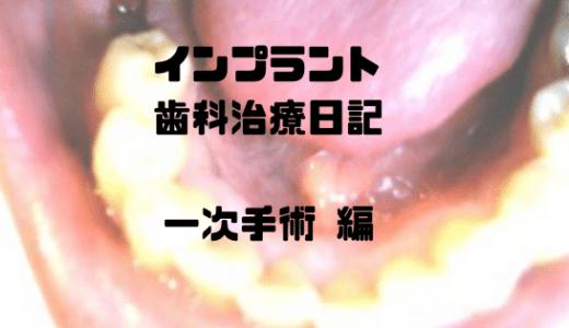 インプラント歯科治療 体験記(写真体験記) -インプラント一次手術編