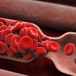 Waspada Bahaya Pembekuan Darah yang Tidak Normal